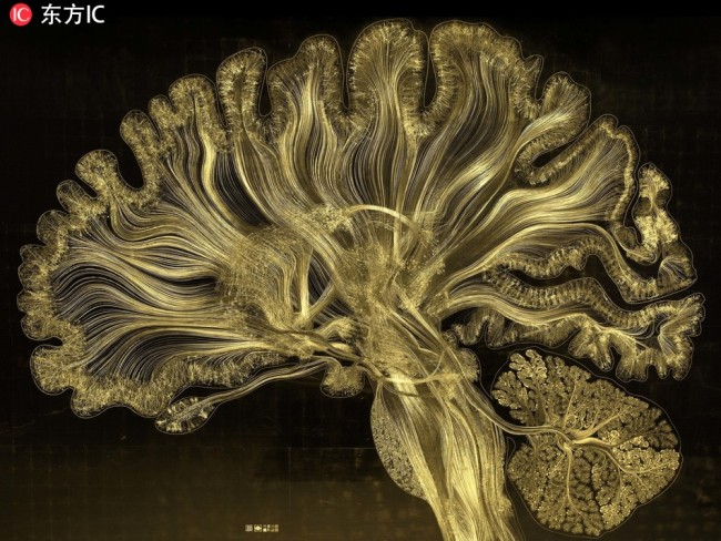 The images showcase the incredible complexity of the human brain through an explosive fusion of art and science. [Photo: IC]