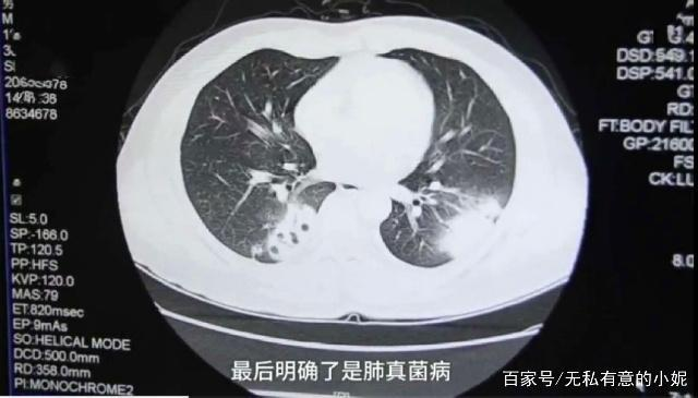 The doctor decided to do a lung puncture for further testing, and was astonished to find his lungs had been infected by fungus.[Screenshot from PearVideo report]